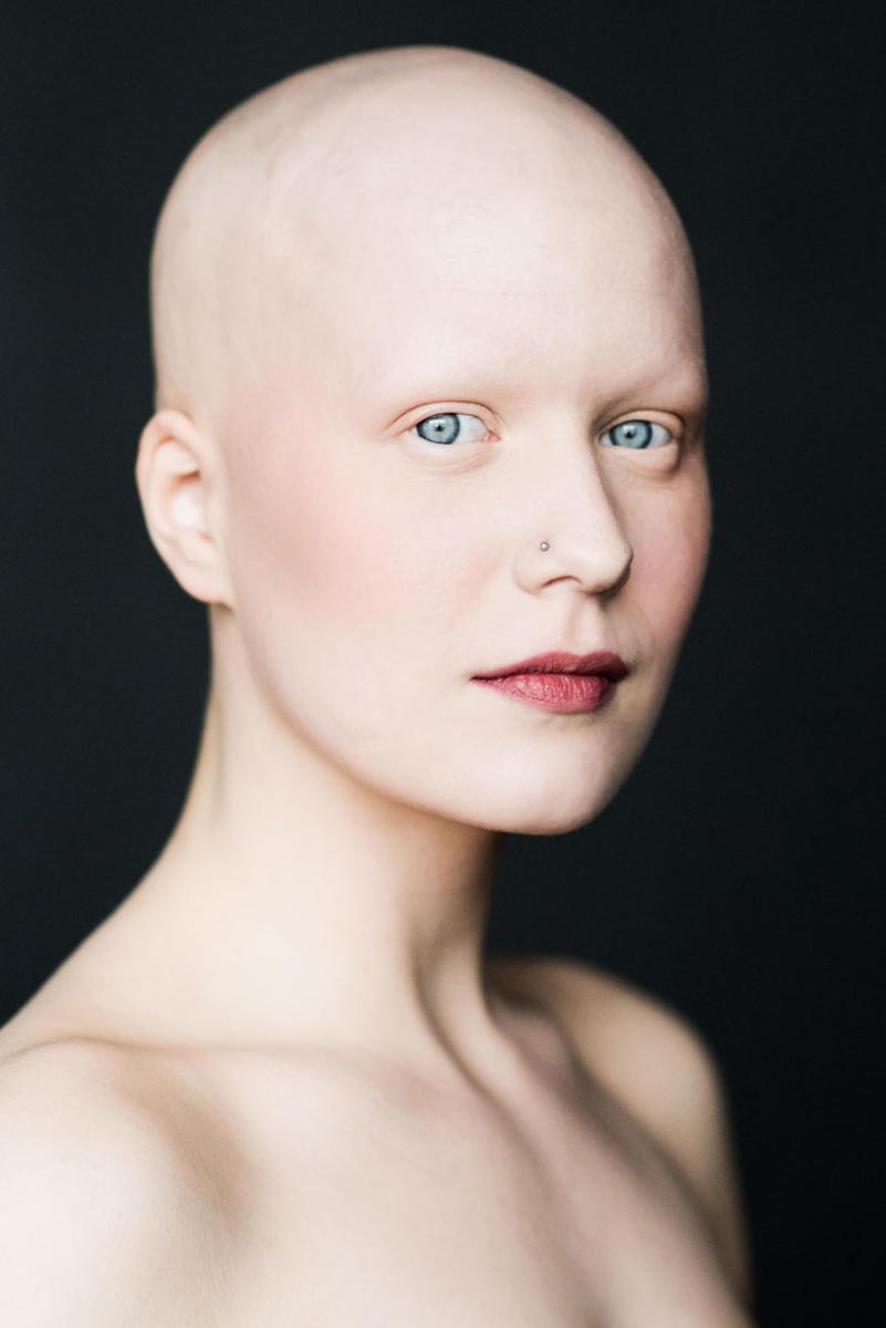 Фотопроект: Без волос и прекрасны