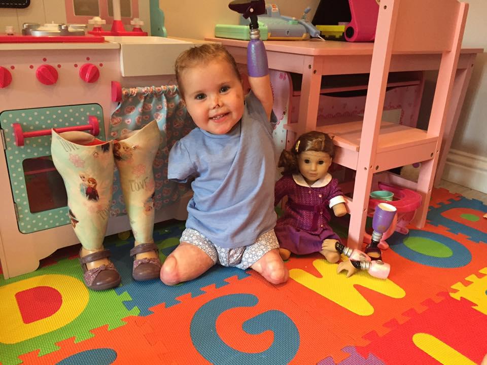 Малышка-инвалид получила специальную куклу, которая выглядит так же