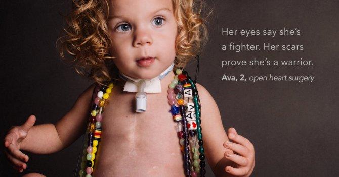 Фотопроект: Бесстрашные дети