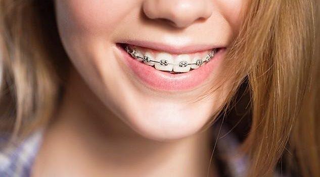 Выровнять зубы брекетами: как сделать это красиво