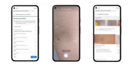Google разработал приложение, которое умеет определять болезни кожи