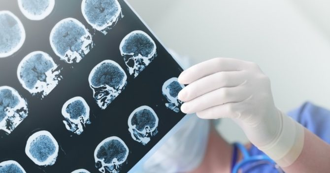 Искусственный интеллект сможет распознавать болезнь Альцгеймера